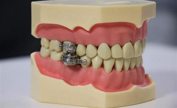 国外开发出新减肥神器 锁住牙齿无法进食
