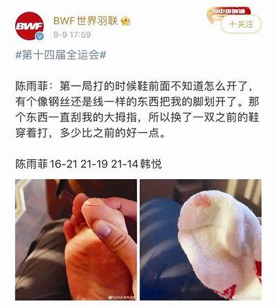 陈雨菲比赛时脚被李宁鞋划伤:品牌紧急回应 疑似同款下架